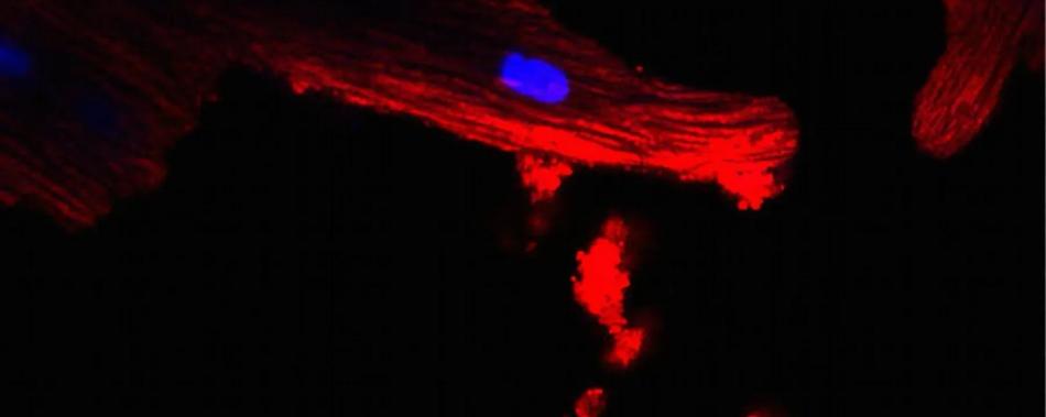 Жировые клетки посылают в сердце сигналы митохондриального бедствия