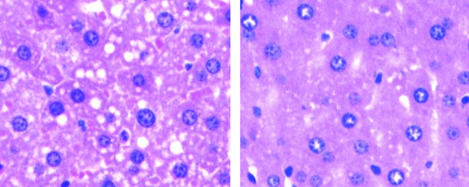 Кишечный микроб оказался виновен в безалкогольной жировой болезни печени.