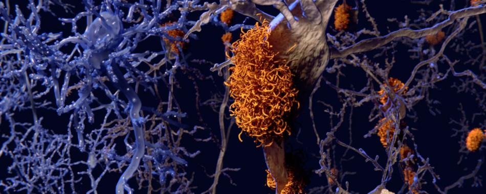 Ген риска болезни Альцгеймера парадоксальным образом защищает от потери памяти