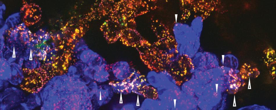 Клетки растений могут обмениваться органеллами