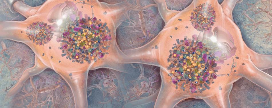 Инфографика: клеточные отходы являются причиной болезни Паркинсона?