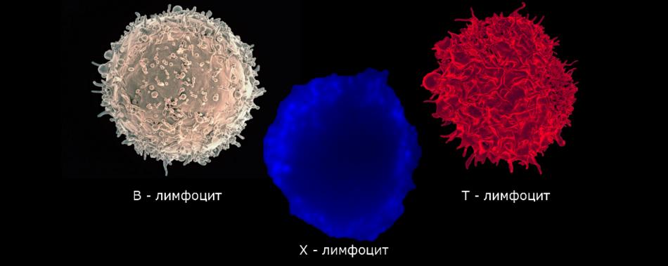 Обнаружен новый тип иммунных клеток у пациентов с диабетом 1 типа