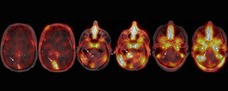 Звуковые волны помогают в лечении опухолей головного мозга