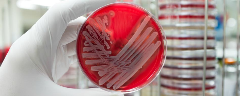 Мнения ученых: Нам нужно больше, чем новые антибиотики для борьбы с устойчивостью бактерий