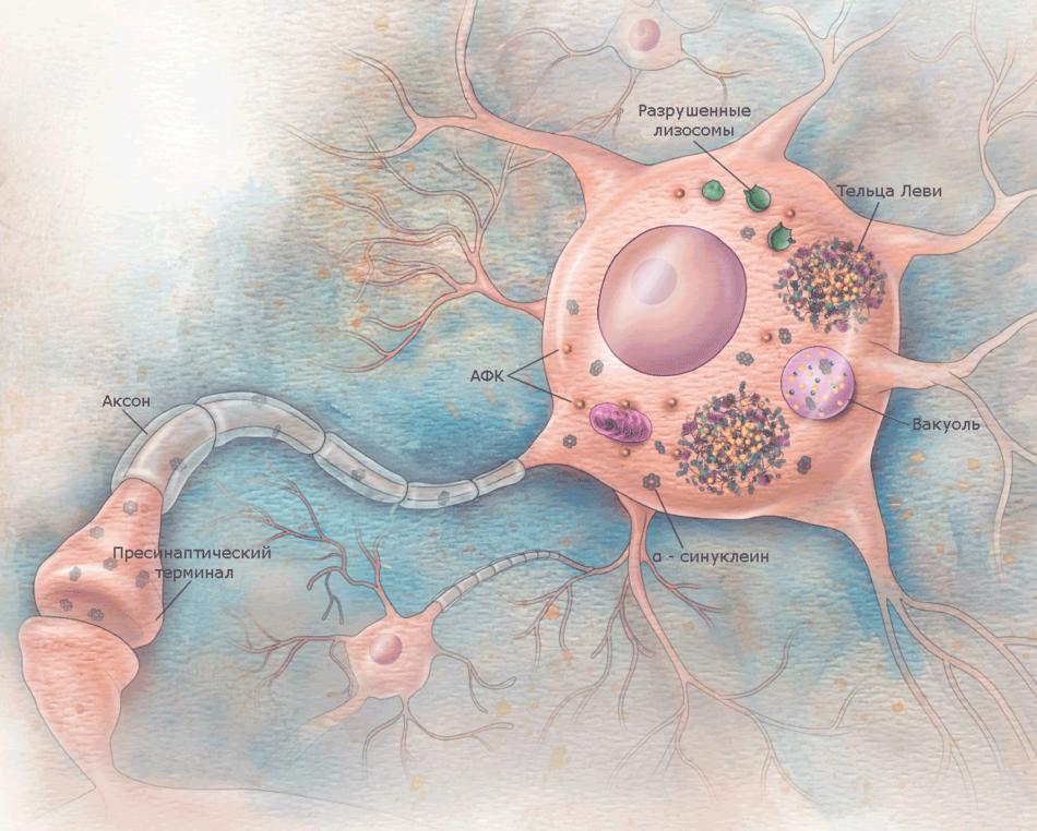 Клетка при синдроме Паркинсона - лизосомы разрушены