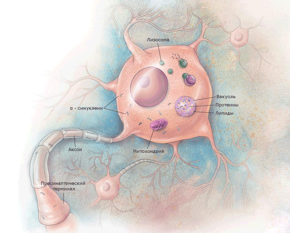 Здоровая клетка с нормальными лизосомами