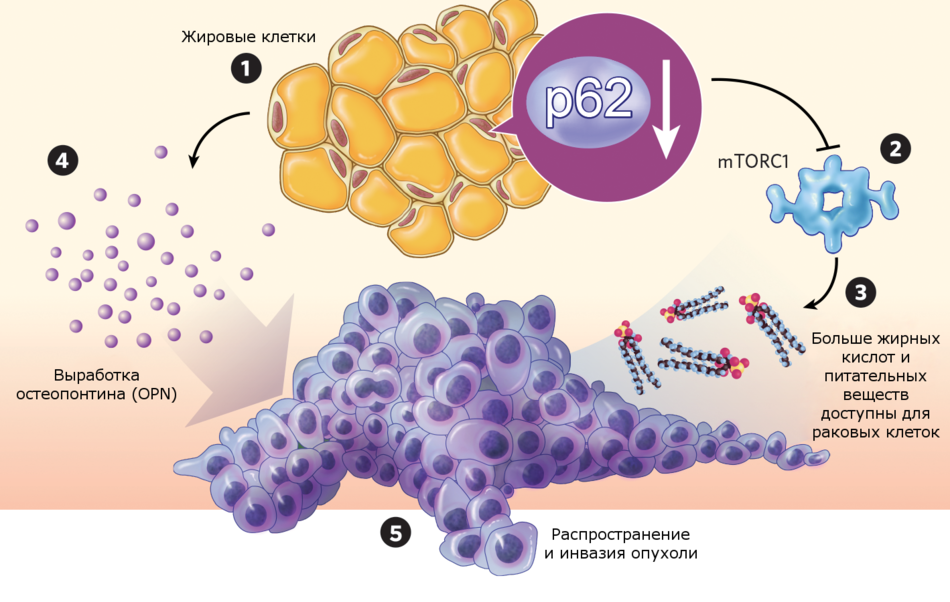 Активаторы рака: как жировые клетки помогают в развитии опухолей