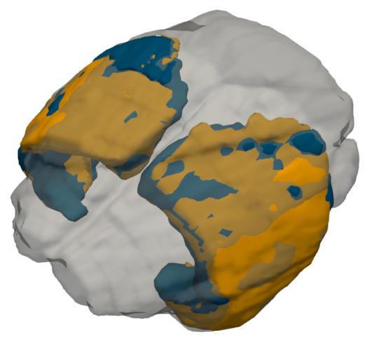 Мозг землеройки зимой и летом