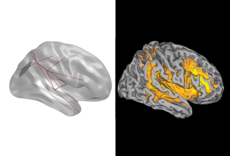 Сравнение активности мозга у людей с синдромом Альцгеймера и здоровых людей